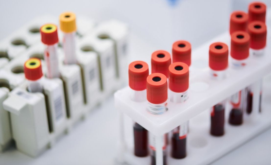 Three Coronavirus patients were cured with blood plasma transfusion of people who have been recovered from the Coronavirus inAustria